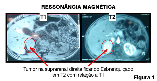 A imagem mostra tumores detectados pela ressonância magnética.